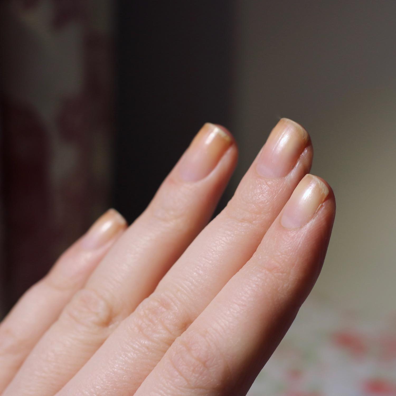 Splijtende Nagels En Hoe Er Vanaf Te Komen! - Pinky Polish - Beautyblog